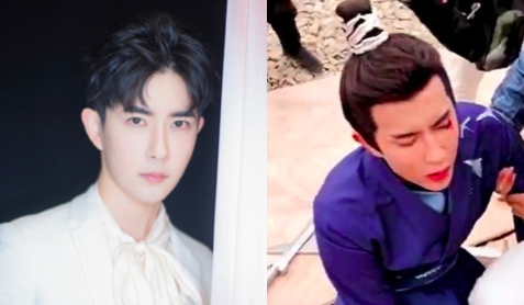 """Yu Menglong Addresses Bloody Eye Injury During Filming for """"The Love Lasts Two Minds"""""""